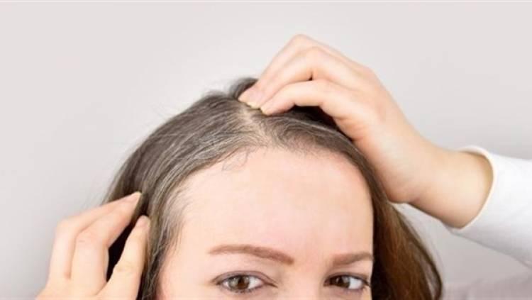 تراجع كثافة الشعر ينذر بمشكلة صحية