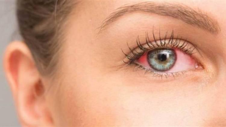 باحثون: احمرار العين تنذر بالتهاب الملتحمة